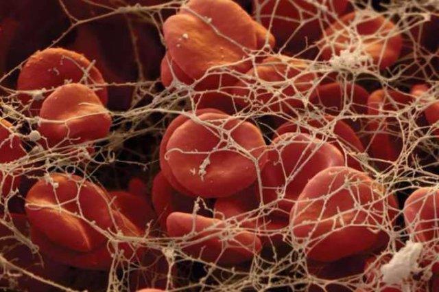 Кровь человека на ране
