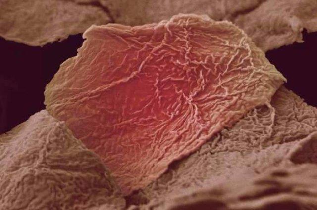 Обгоревшая клетка кожи человека