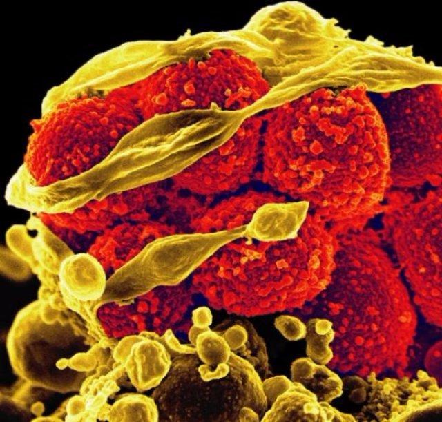Менингит стафилококковый
