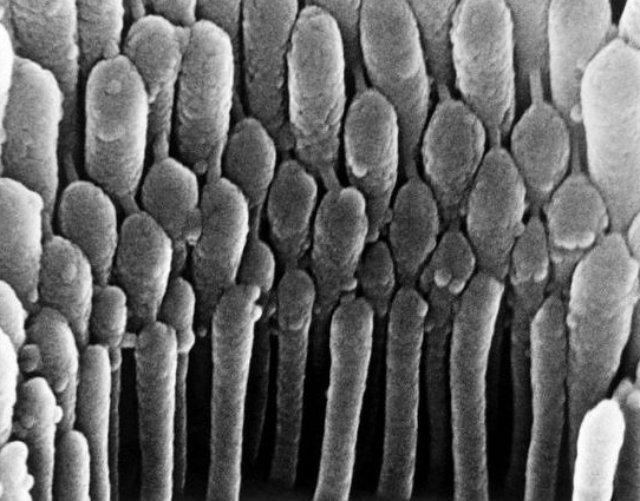 Волоски уха (стереоцилии)