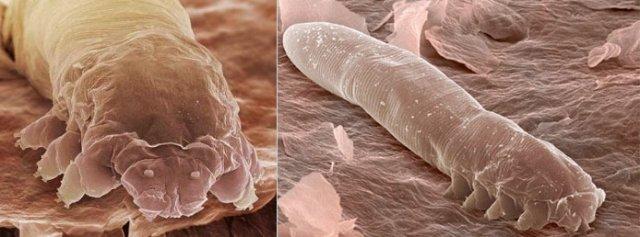 Кожа человека под микроскопом: кто же обитает на нашем лице?